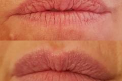dawn lips feb 2018